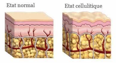 Effet cellulite sur la peau